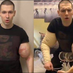 Russian Kid Gets His Arms Drained AGAIN